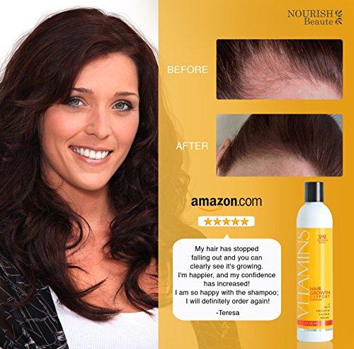 Vitamins Hair Loss Shampoo - 121% Regrowth and 47% Less Thinning -...