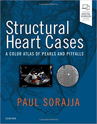Structural heart cases a color atlas of pearls and pitfalls structural heart cases a color atlas of pearls and pitfalls 9780323546959 medicine health science books amazon fandeluxe Image collections