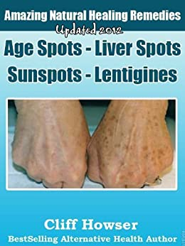 Amazing Natural Healing Remedies - Age Spots - Liver Spots - Sunspots - Lentigines by [Howser, Cliff]