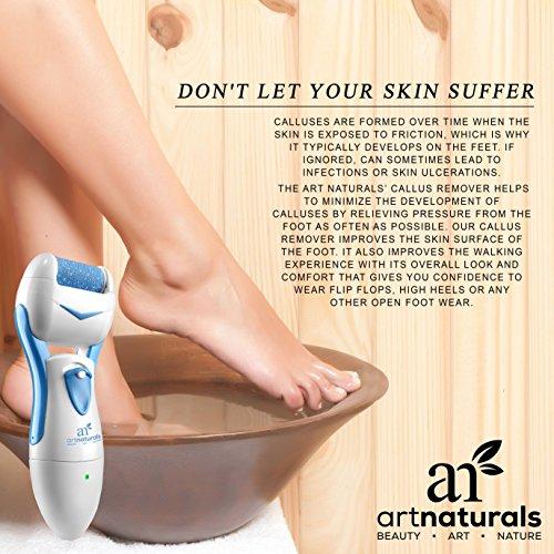 artnaturals electric callus remover tool most effective import it all