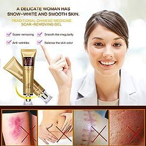 Wisdompark Acne Scar Removal Cream Skin Repair Face Cream Acne Spots Acne Treatment Blackhead Whitening Cream Stretch Marks 30ml (1pcs)