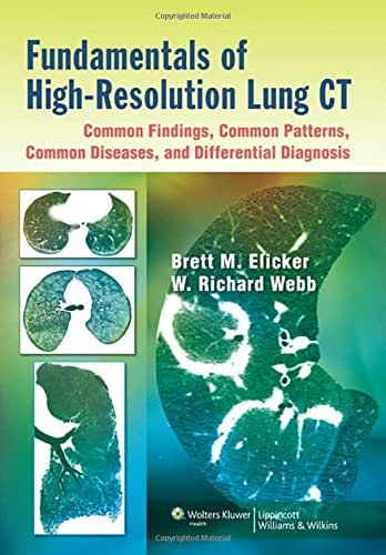 Fundamentals of High-Resolution Lung CT: Common Findings, Common Patterns, Common Diseases, and Differential Diagnosis: Common Findings, Common Patterns, Common Diseases, and Differential Diagnosis
