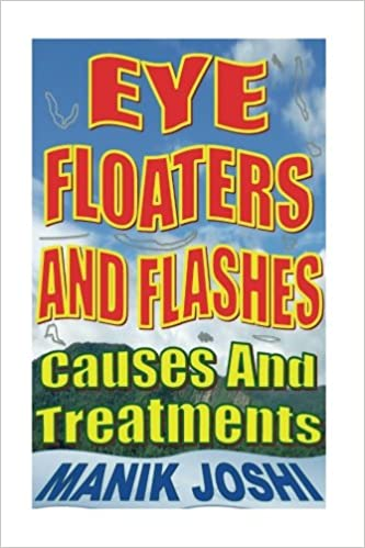 Buy Eye Floaters and Flashes: Causes and Treatments Book