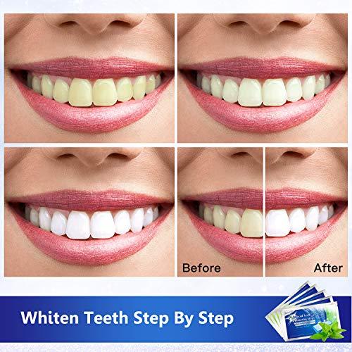 MayBeau Teeth Whitening Strips, 56 Packs 3D Teeth Whitening Kits Gentle Teeth Whitener Whitestrips for Sensitive Teeth, Dental Bleaching Treatment for Teeth Whitening Stain Removal