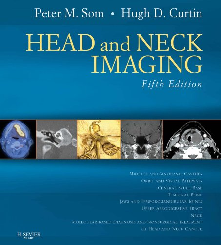 Head and Neck Imaging (Expert Consult) (Diagnostic Imaging Head And Neck)