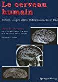 img - for Le cerveau humain: Surface, coupes s ri es tridimensionnelles et IRM (French Edition) book / textbook / text book