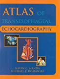 img - for Atlas of Transesophageal Echocardiography book / textbook / text book