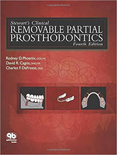 Buy stewarts clinical removable partial prosthodontics book buy stewarts clinical removable partial prosthodontics book online at low prices in india stewarts clinical removable partial prosthodontics reviews fandeluxe Images