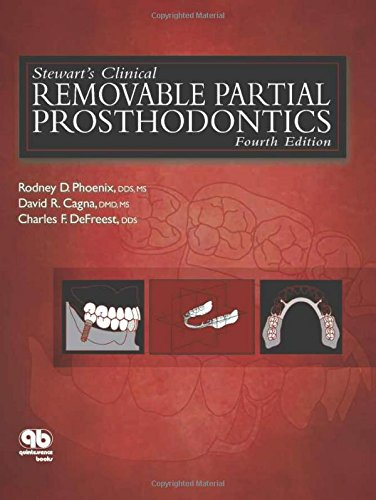 Stewart's Clinical Removable Partial Prosthodontics...