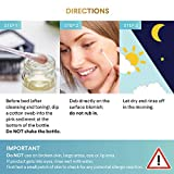 Glossiva Drying Lotion, Acne Spot Treatment Dries