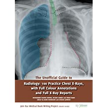 The Unofficial Guide to Radiology: 100 Practice Chest X-Rays, with Full Colour Annotations and Full X-Ray Reports (Unofficial Guides to Medicine)