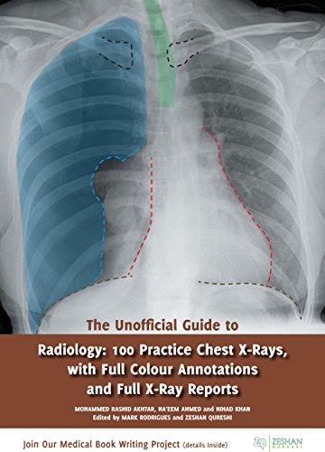 The Unofficial Guide to Radiology: 100 Practice Chest for sale  Delivered anywhere in USA