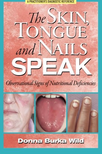 The Skin Tongue and Nails Speak: Observational Signs of Nutritional Deficiencies