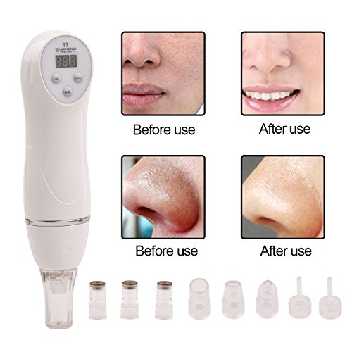 Microdermabrasion Kit,CkeyiN [6 Tips] Portable Digital Diamond Microdermabrasion Pen Facial Skin Care Vacuum Massager Beauty Device,Exfoliates and Resurfaces