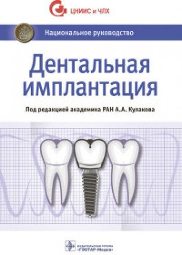 Download Dentalnaia implantatsiia pdf epub