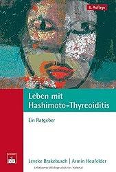 Leben mit Hashimoto-Thyreoiditis: Ein Ratgeber