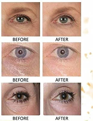 30 pairs of 24K Gold Powder Crystal Gel Collagen Eye Masks | For Anti-Aging & Moisturizing; Reducing Dark Circles, Puffiness, Wrinkles | By L'AMOUR yes!