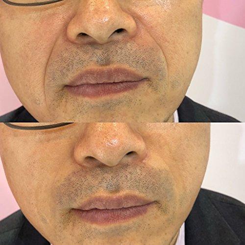 Vitayes Instant Ageback, Ageless Facelift Cream for Instant Eye Bag  Removal, Under Eye Bags, Eye Dark Circle, Fine Lines on Eye Bags (x26  Sachets)