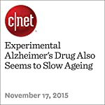Experimental Alzheimer's Drug Also Seems to Slow Ageing | Michelle Starr