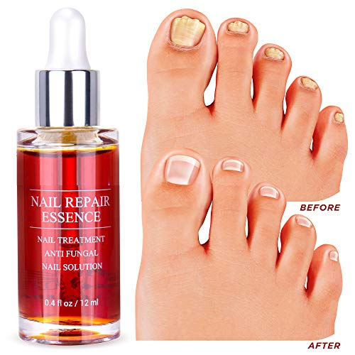 Nail Fungus Repair, Maximum Strength Fungal Toenail Solution, Nail Repair, Restores Healthy Appearance of Discolored & Damaged Nails (Best Medicine To Treat Nail Fungus)