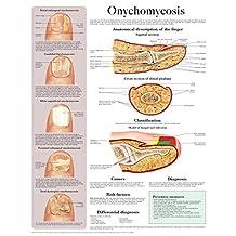 Onychomycosis e chart: Full illustrated