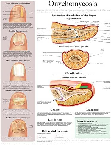 Onychomycosis e chart: Full illustrated