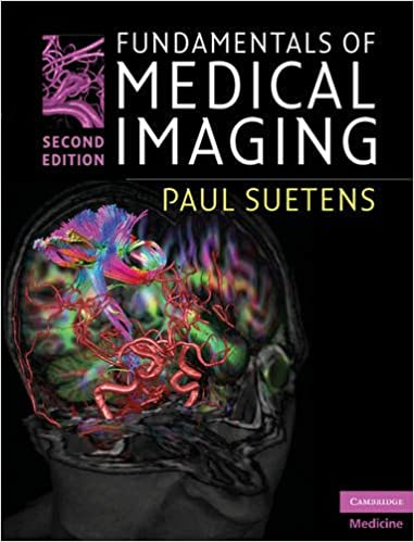 Fundamentals of medical imaging 9780521519151 medicine health fundamentals of medical imaging 9780521519151 medicine health science books amazon fandeluxe Choice Image