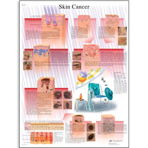 3B Scientific VR1295L Glossy Laminated Paper Skin Cancer Anatomical Chart, Poster Size 20