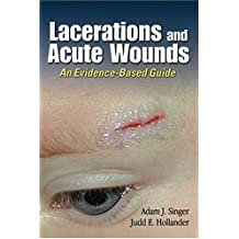 Lacerations and Acute Wounds: An Evidence-Based Guide