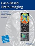 Case-Based Brain Imaging, Tsiouris, A. John and Communale, Joseph, 1604069538