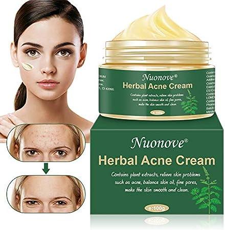 Anti-acné: Esta crema anti-acné usa solo los mejores ingredientes anti-acné más potentes. Es extrema