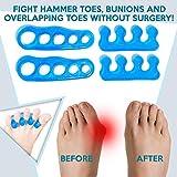 Premium Gel Toe Separators, Straighteners & Spacers