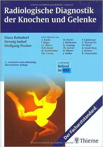 Radionuklidtherapie bei entzündlichen Gelenkerkrankungen