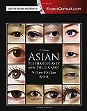 Asian Blepharoplasty and the Eyelid Crease, 3e