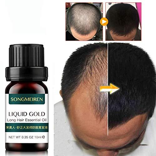 Ginger Hair Growth Essential Oil Nourishing Anti-Hair Loss Hair Growth Liquid 10ml