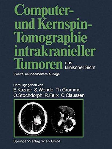 Computer- und Kernspin-Tomographie intrakranieller Tumoren aus klinischer Sicht (German Edition)
