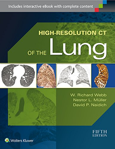 High-Resolution CT of the Lung Pdf