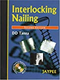 Interlocking Nailing, Tanna, D.D., 8180612279
