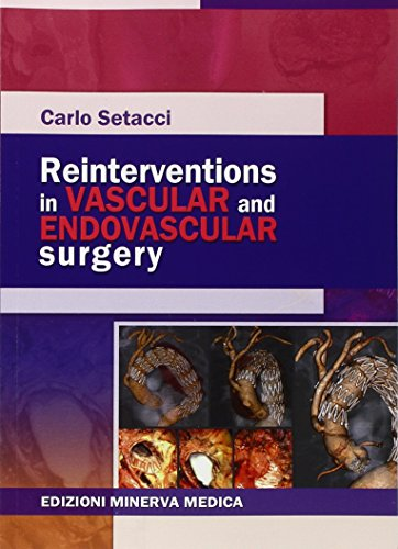 Reinterventions in vascular and endovascular surgery