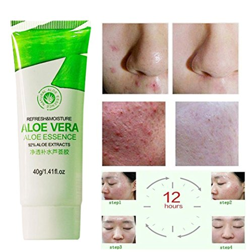 Yeefant Aloe Vera Gel Acne Remove Vanishing Dispelling Plaster Cream for Face Body Soothing,Organic Moisturizer,Rosacea,Psoriasis,Rashes,Dry Skin,Wrinkles,Repair Skin Care Beauty