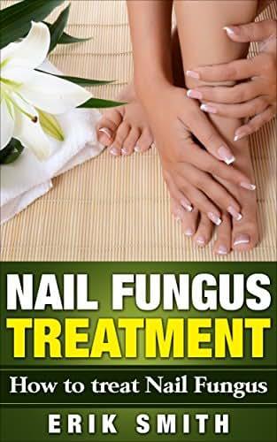 Nail Fungus Treatment: A beginners guide to Nail Fungus Treatment