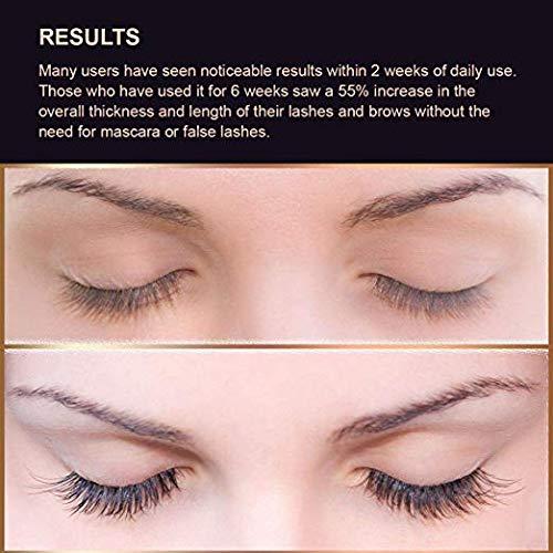 Silksence Eyelash Growth Serum for Lash and Brow Irritation Free Formula
