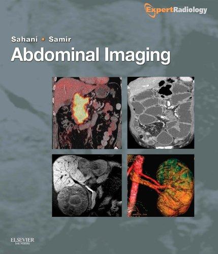 Abdominal Imaging: Expert Radiology Series Pdf