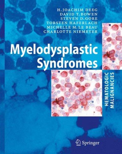 Myelodysplastic  Syndromes  Hematologic Malignancies