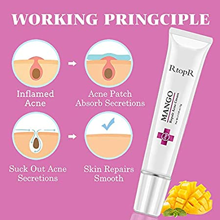 Crema para el acné, Crema para el acné, Crema para el tratamiento del acné, Crema para el tratamiento de la cicatriz del acné, Crema contra el acné, Crema antipinilla, Equilibrio con agua y aceite