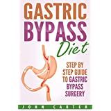 """Is the Gastric Bypass Procedure and Diet right for You?Click the READ MORE button to learn how Gastric Bypass surgery can help you hit the """"reset"""" button and adopt a new, healthy lifestyle!When you open Gastric Bypass Diet, you'll learn all the pros ..."""