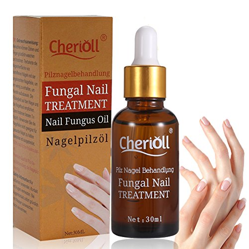 Antifungal Nail Treatment