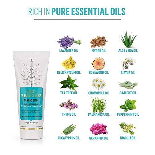 Buy acne spot removal cream