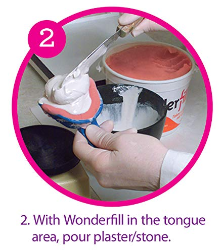 Wonderfill Tongue & Void Filler by Dental Creations, Ltd (Image #2)