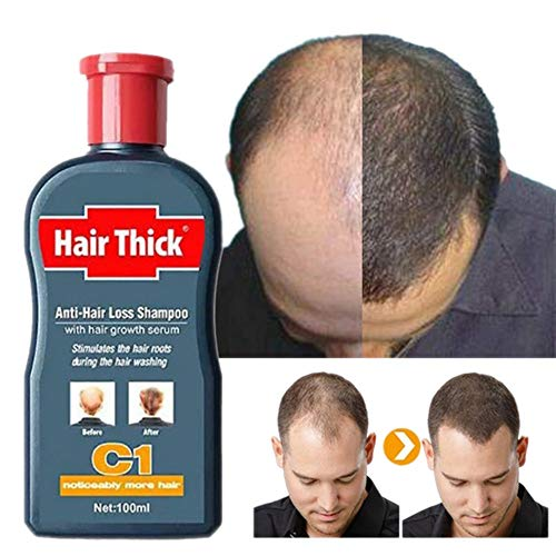 Fast Hair Growth Shampoo Herbal Repair Damaged Coarse Anti Hair Loss Serum Unisex (100ml)